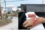 Chạy xe máy nẹt pô inh ỏi, nam thanh niên bị chém đứt gân tay