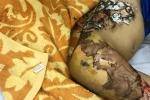 Hà Nội: Bé trai 4 tuổi hoại tử da vì đắp lá chữa bỏng
