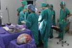 Phát hiện khối u to gần 7kg do đau bụng chủ quan không đi khám