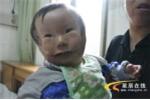 Hội chứng lạ, mẹ chết lặng khi sinh con '2 mặt'
