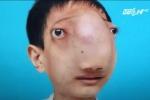 Hành trình gian nan tìm lại khuôn mặt của nam thanh niên Thanh Hóa