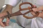 Cắt bỏ một phần xương sọ lấy cây kéo hoen rỉ khỏi đầu cháu bé ở Đồng Nai