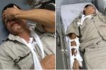 Nhóm côn đồ truy sát dã man người đàn ông 61 tuổi ở Hà Nội