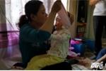 Xót xa bé gái 5 tuổi nặng 10kg, toàn thân chảy máu do mắc bệnh hiếm gặp