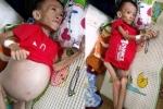 Xót thương bé trai 6 tuổi bụng to như trống đau đớn vật vã từng đêm