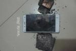 Đến lượt điện thoại Xiaomi phát nổ tại Việt Nam gây bỏng đùi người dùng