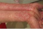 Cách điều trị bốn dạng viêm da tấn công mùa hanh khô