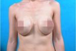 'Hãi hùng' những bộ ngực dị dạng, xập xệ không tưởng sau nâng cấp