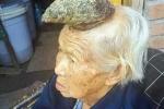 Kì lạ bà cụ 87 tuổi với chiếc sừng trên trán suốt hai năm