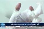 Hà Tĩnh: Tự chế pháo nổ, bé 8 tuổi mất 2 ngón tay