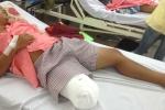 Chẩn đoán nhầm khiến bệnh nhân phải cưa chân, bác sỹ thách thức người nhà dám kiện?