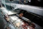 Những hình ảnh khủng khiếp về nạn đói đang hoành hành ở Venezuela