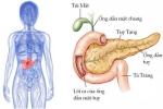 Nhận diện nguy cơ ung thư tụy