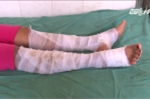 Nữ sinh Khánh Hòa mang xăng đi đốt trường bị bỏng nặng