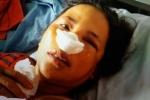 Tiểu thương bị nhân viên quản lý chợ đánh gãy sống mũi