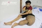 Vì sao nam thanh niên mang 'chân voi' khổng lồ chưa thể phẫu thuật?