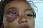 Bé trai 16 tháng tuổi mắt sưng như quả trứng gà vì viêm xoang gây biến chứng