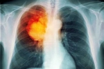 'Sát thủ' hàng đầu gây ung thư phổi