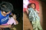 Mẹ mất tích, bé gái người Mông bị suy dinh dưỡng nặng