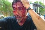 Côn đồ đánh cư dân vỡ đầu, chấn thương sọ não: Có thể xử lý tội Giết người