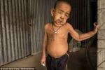 Căn bệnh quái ác khiến cậu bé 4 tuổi già như ông lão 80