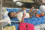 Điều trị thành công cho cháu bé chữa thuốc đông khiến cánh tay bị dính vào sườn