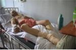 Rơi nước mắt nam sinh nhà nghèo đi làm thêm bị điện phóng phải cắt bỏ chân
