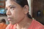 Bệnh lạ khiến người phụ nữ có mụn thịt mọc khắp người