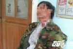 Trưởng công an xã đánh vỡ đầu dân ở Huế: 'Phải truy tố hình sự nếu thương tích nặng'