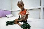 Hình ảnh khủng khiếp về người chết đói Yemen khiến cả thế giới sửng sốt