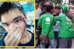 Nam thanh niên bị người đội mũ GrabBike vô cớ chửi bới, hành hung