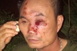 Bảo vệ khu chung cư Linh Đàm bị côn đồ đánh nhập viện