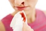 Máu tuôn xối xả sau phẫu thuật xoang mũi do mắc xuất huyết giảm tiểu cầu