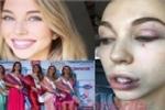 Thí sinh Hoa hậu Hoàn vũ bị 4 phụ nữ đánh hội đồng dã man