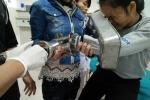 Cấp cứu bé gái 15 tuổi bàn tay bị cuốn vào máy xay thịt