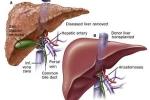 Vô tình đi khám, phát hiện ung thư gan