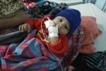 Quảng Bình: Hy hữu bé 5 tháng tuổi bị sỏi thận