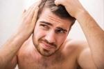 Cảnh báo thói quen sai lầm phổ biến dễ khiến quý ông bị hói