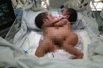 Chưa thể phẫu thuật tách rời 2 bé sơ sinh bị dính liền ở Hà Giang