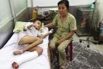 Khủng khiếp với căn bệnh lạ vừa phát hiện tại Việt Nam gặm nhấm rụng tay chân