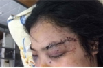 Cô gái bị 20 thanh niên truy sát, cắt tai: Công an thông tin mới nhất