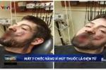 Thuốc lá điện tử phát nổ trong miệng, người đàn ông mất 7 cái răng, bỏng nặng