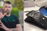 Đến lượt iPhone 7 phát nổ trong khi đàm thoại