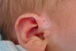 Sưng nửa mặt chỉ vì lỗ hở bằng đầu tăm ở tai