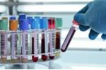 6 xét nghiệm giúp phát hiện sớm ung thư