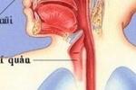 Phẫu thuật khối u hiếm gặp ở vùng cổ