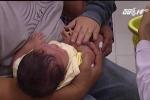 Y tá tiêm nhầm vắc-xin phòng lao vào đùi 4 trẻ sơ sinh