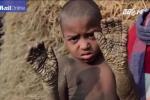 Xót xa cậu bé 8 tuổi có cơ thể đang dần hóa đá