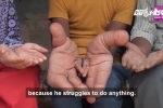 Kinh ngạc cậu bé Ấn Độ có bàn tay khổng lồ nặng 8kg