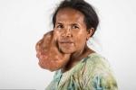Người phụ nữ cắt bỏ khối u to như đầu người trên mặt
